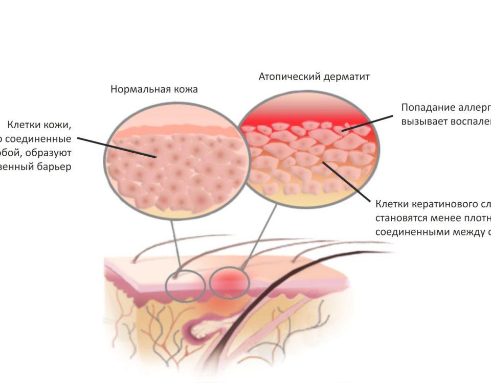 Лечение атопического дерматита ультрафиолетом | Dermalight 311 UVB Дермалайт
