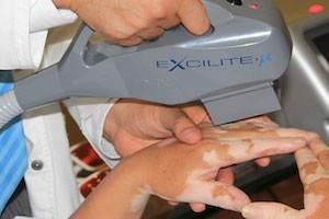 Лазерная терапия при витилиго