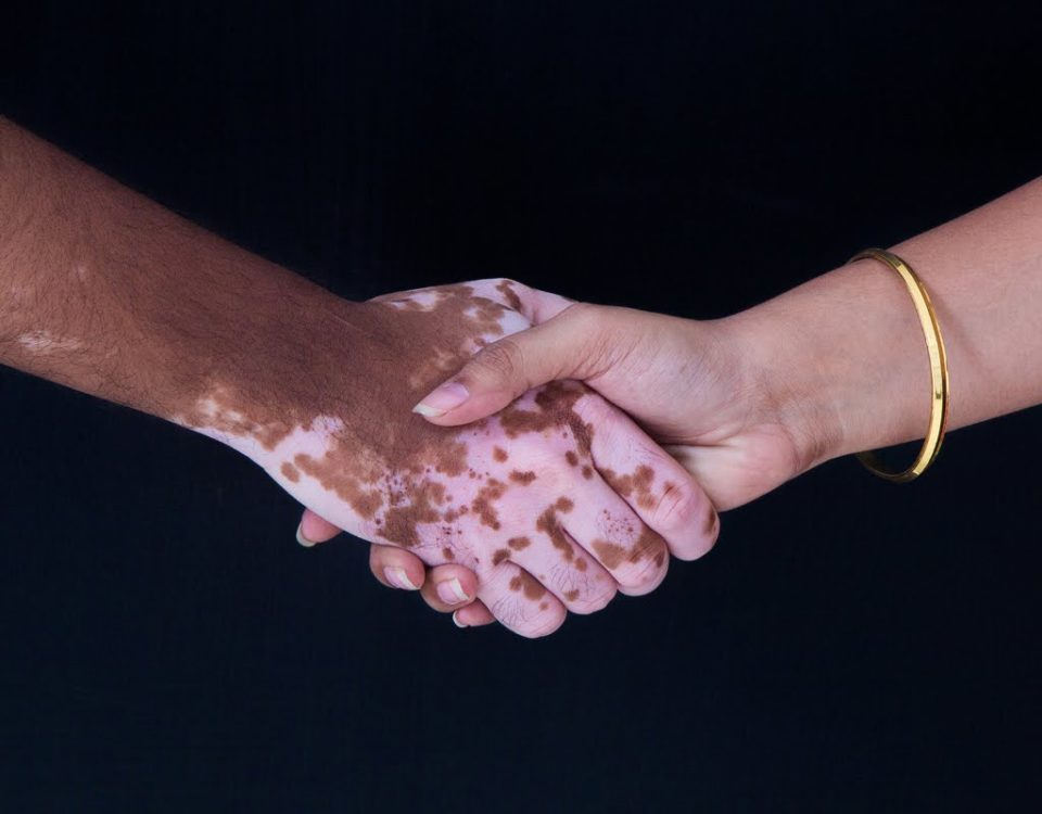 Витилиго на руках – как бороться с проблемой | Dermalight 311 UVB