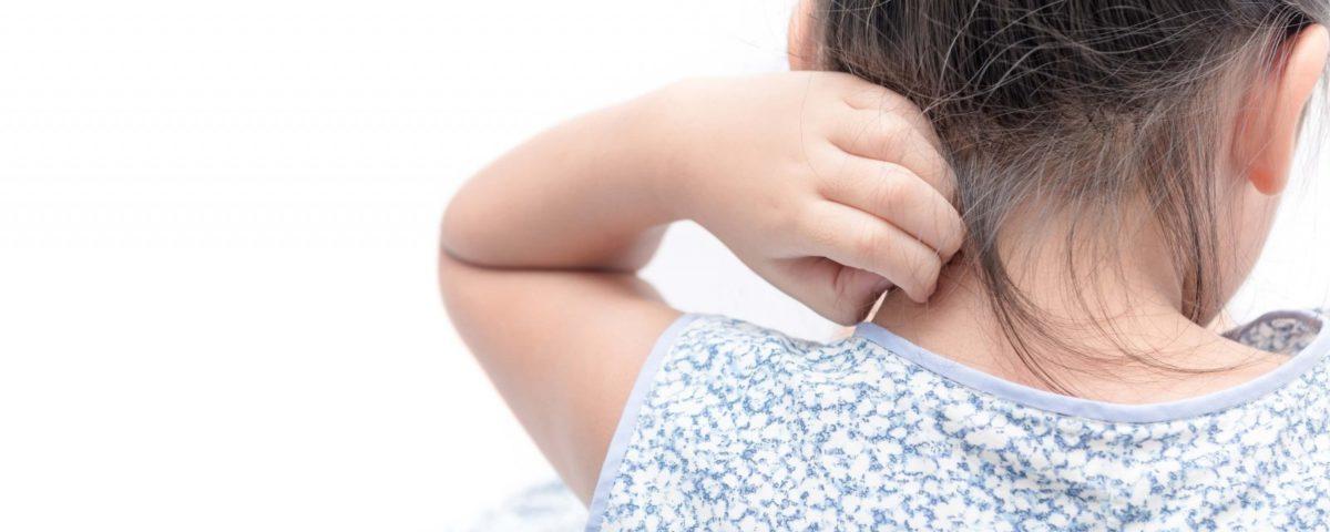 Лечение псориаза у детей в домашних условиях