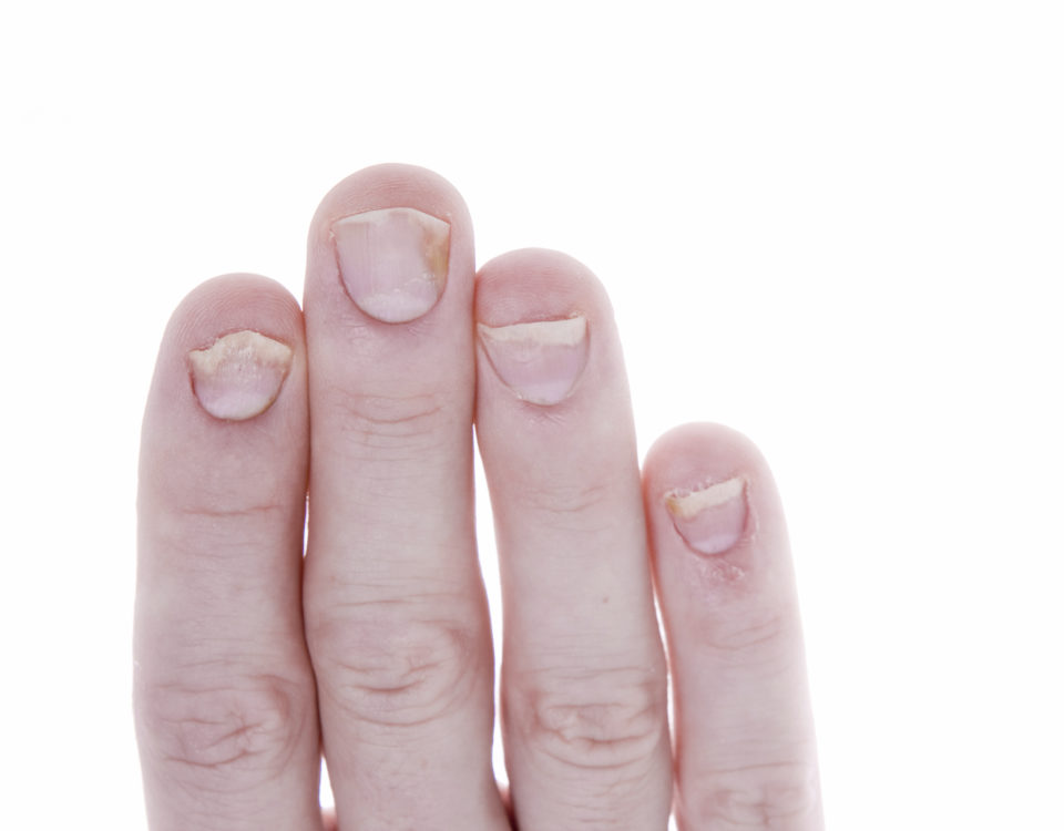 Лечение псориаза на ногтях