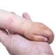 Лечение атопического дерматита в 2019 году