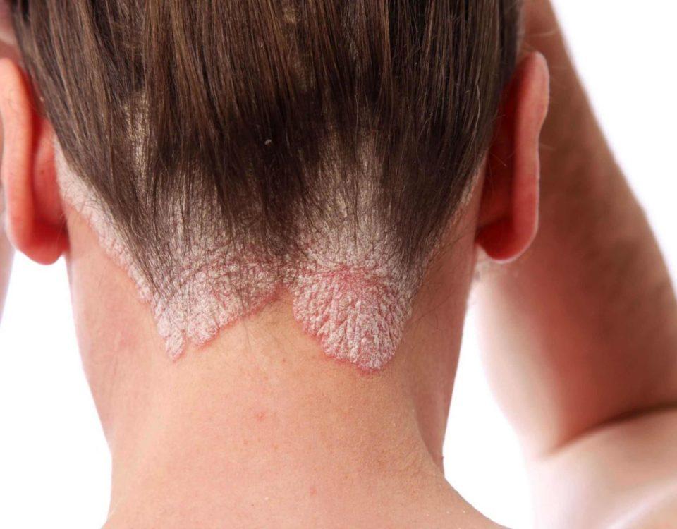 Лечение псориаза на голове | Dermalight 311 UVB