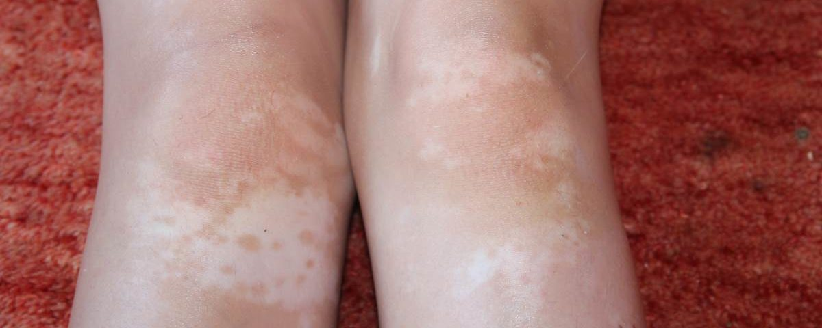 Лечение витилиго и белых пятен на ногах | Дермалайт 311 УВБ