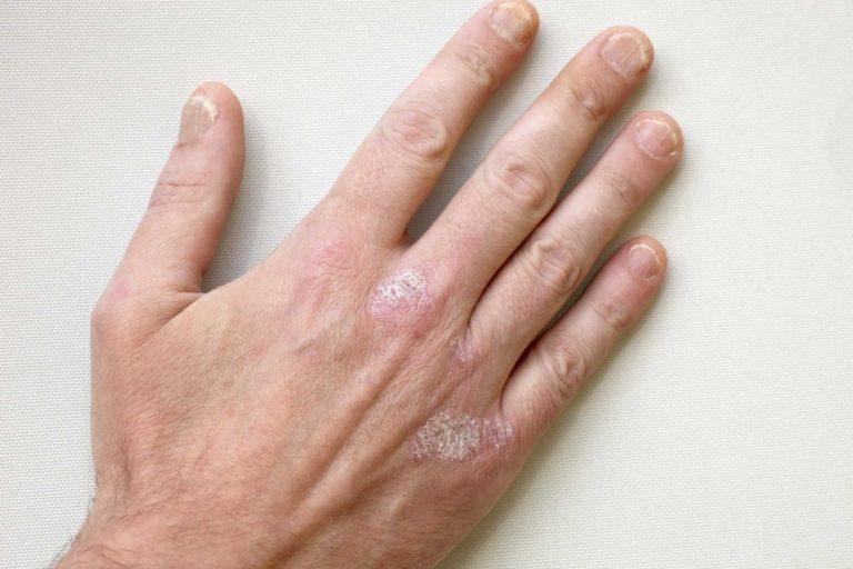 Лечение псориаза на руках ультрафиолетовым прибором Дермалайт 311