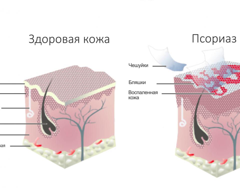 Причины возникновения псориаза и его лечение