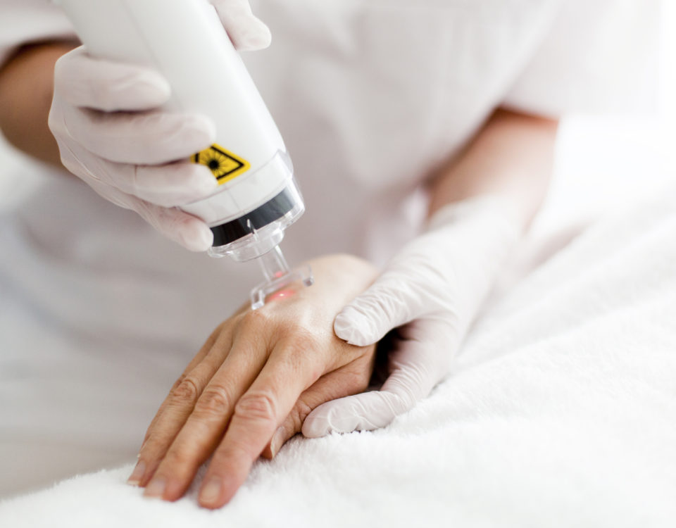 Лечение Витилиго лазером Dermalight 311 UVB